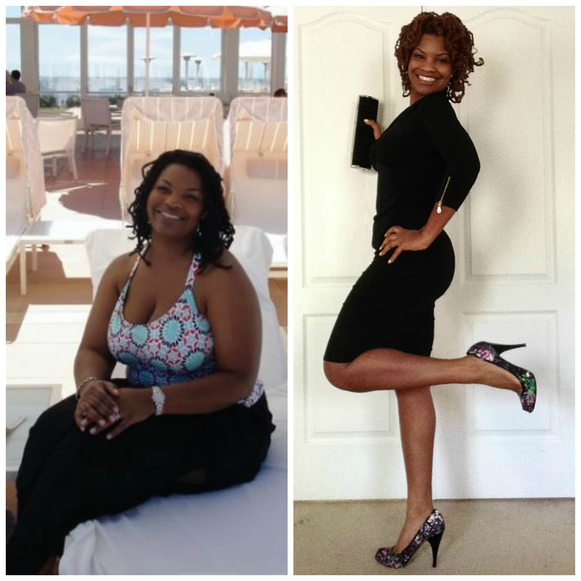 Renee Ross before and after